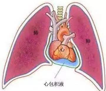 心包积液的检查 心包积液有哪些检查项目